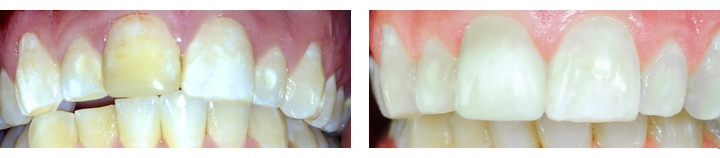 crowns-before-after