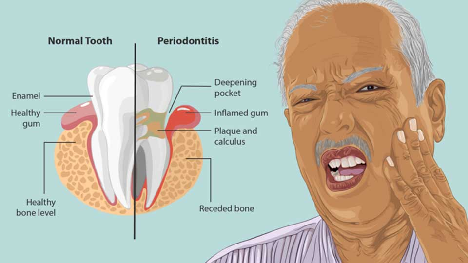 Signs You May Have Early Periodontitis