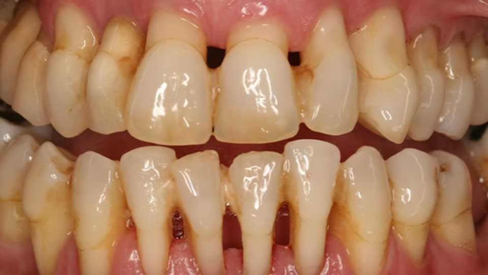 How to Prevent Gingivitis and Have Healthy Gums