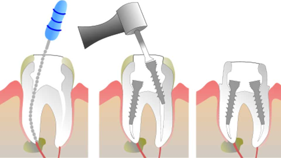 6 Things You Need to Know About a Front Tooth Root Canal