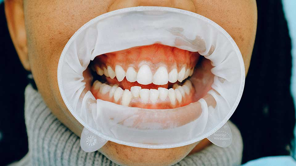 Gimme the Gums: 8 Things You Need to Know About Gum Disease