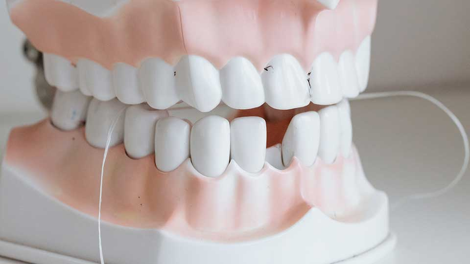 Prevention Is Better Than Cure: 10 Tips for How to Prevent Tooth Decay
