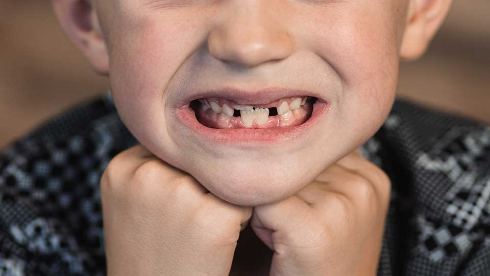 Smile Breakers: 10 Everyday Habits That Lead to Messed Up Teeth