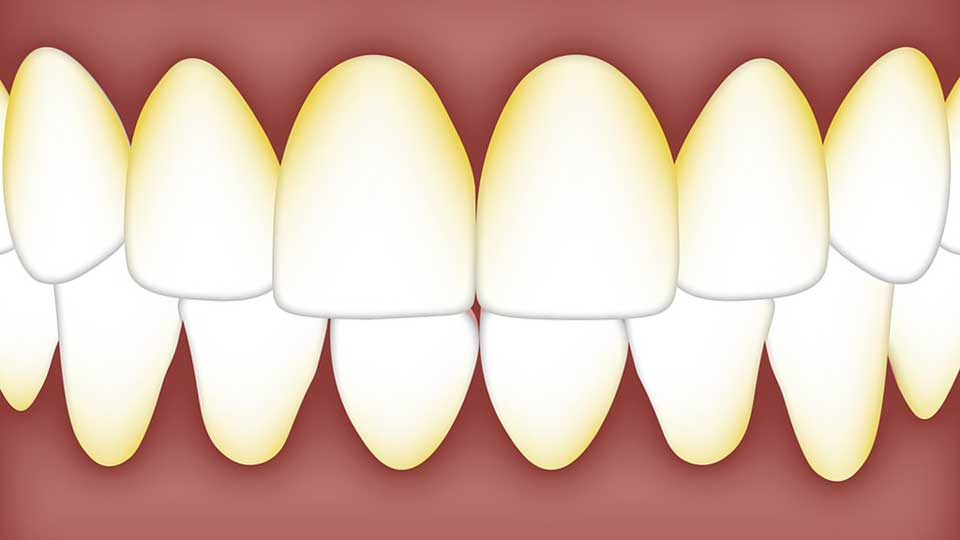 Plaque and Tartar on Teeth: What Are They and How Do You Get Rid of Them?